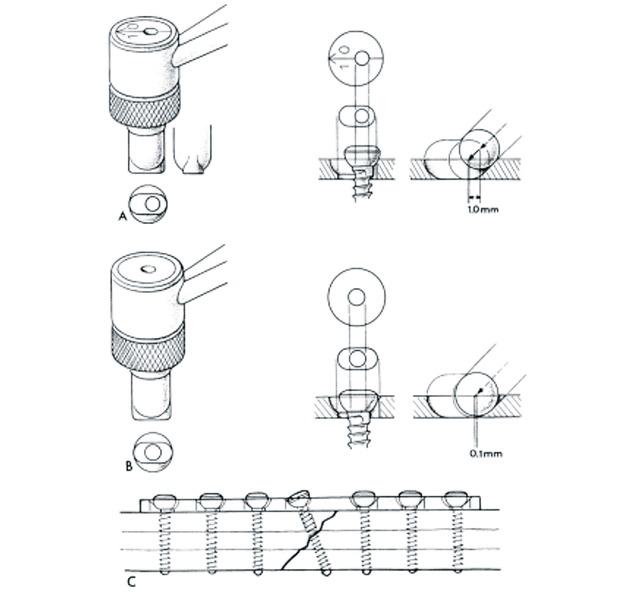 Użycie śruby samozaciskowej do płytki kostnej